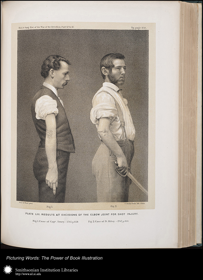 The Medical and Surgical History of the War of the Rebellion, 1861–65 , United States Surgeon General's Office, Washington, D.C.: Government Printing Office, 1870–88, p. 830, Plate LIII.